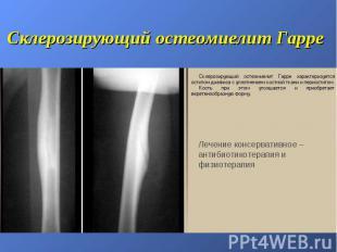 Склерозирующий остеомиелит Гарре