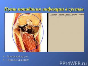 Пути попадания инфекции в сустав Экзогенный артрит Эндогенный артрит