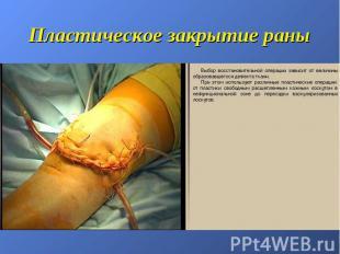 Пластическое закрытие раны