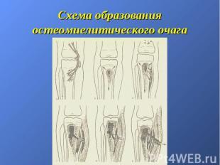 Схема образования остеомиелитического очага