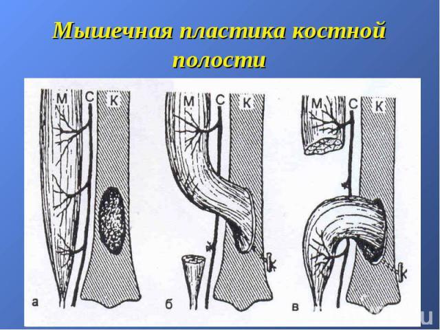 Мышечная пластика костной полости