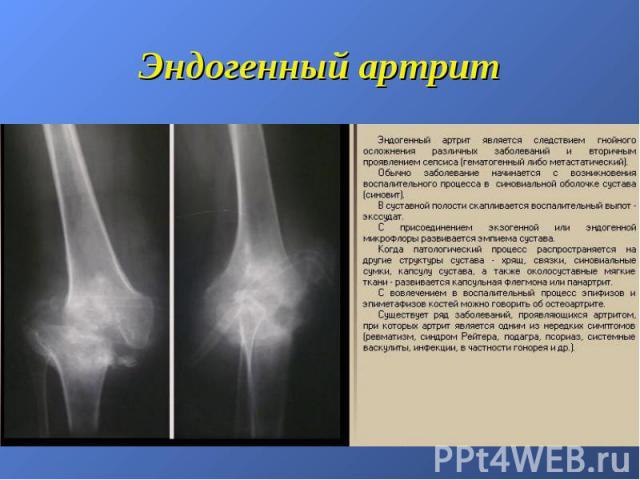 Эндогенный артрит