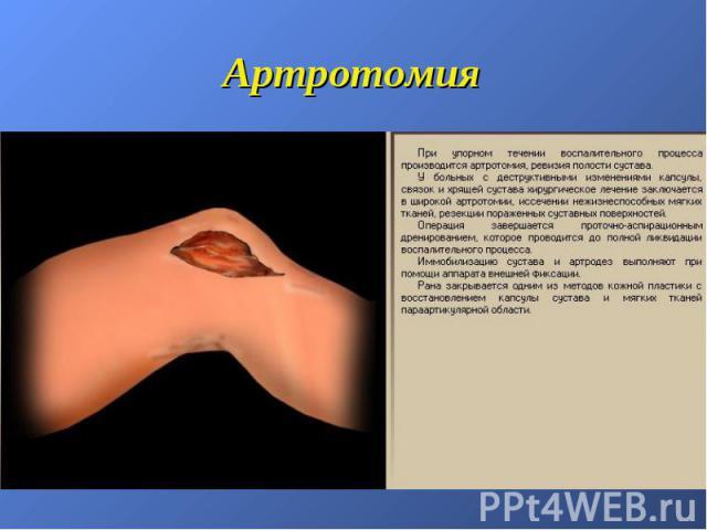Артротомия
