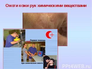 Ожоги кожи рук химическими веществами