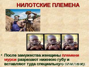 После замужества женщины племени мурси разрезают нижнюю губу и вставляют туда сп