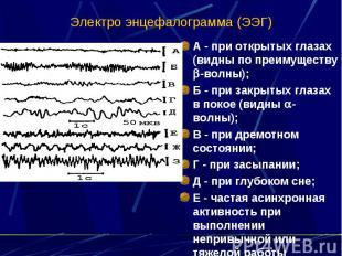 Электро энцефалограмма (ЭЭГ) А - при открытых глазах (видны по преимуществу -вол