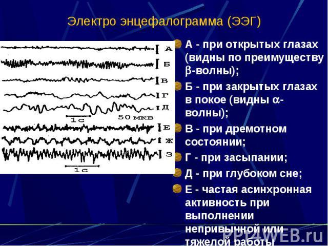 Электро энцефалограмма (ЭЭГ) А - при открытых глазах (видны по преимуществу -волны); Б - при закрытых глазах в покое (видны -волны); В - при дремотном состоянии; Г - при засыпании; Д - при глубоком сне; Е - частая асинхронная активность при выполнен…