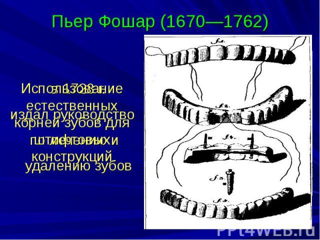 Пьер Фошар (1670—1762) в 1728 г. издал руководство по лечению и удалению зубов