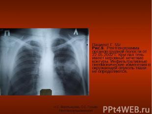 Пациент Г. 55г Рис.9. Рентгенограмма органов грудной полости от 22.05.2002 г. Кр