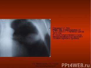 Пациент Г. 55г Рис. 10. Томограмма от 4.07 2002 г. Глубина среза 10,0 см. В тени