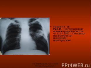 Пациент Г. 55г Рис.11. Рентгенограмма органов грудной полости от 22.07.2002 г. П
