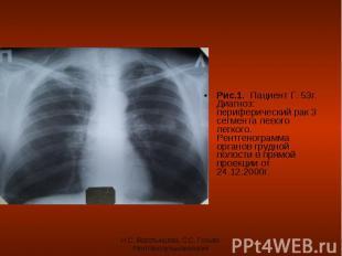 Рис.1. Пациент Г. 53г. Диагноз: периферический рак 3 сегмента левого легкого. Ре