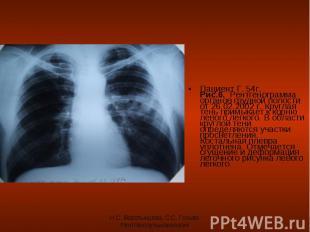 Пациент Г. 54г. Рис.6. Рентгенограмма органов грудной полости от 26.02.2002 г. К