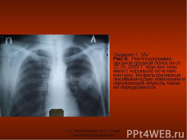 Пациент Г. 55г Рис.9. Рентгенограмма органов грудной полости от 22.05.2002 г. Круглая тень имеет неровные нечеткие контуры. Инфильтративные пневмонические изменения в окружающей опухоль ткани не определяются. Пациент Г. 55г Рис.9. Рентгенограмма орг…