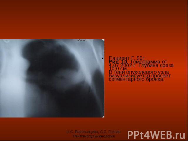 Пациент Г. 55г Рис. 10. Томограмма от 4.07 2002 г. Глубина среза 10,0 см. В тени опухолевого узла визуализируется просвет сегментарного бронха. Пациент Г. 55г Рис. 10. Томограмма от 4.07 2002 г. Глубина среза 10,0 см. В тени опухолевого узла визуали…