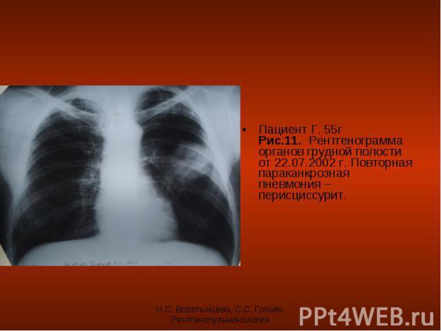 Пациент Г. 55г Рис.11. Рентгенограмма органов грудной полости от 22.07.2002 г. Повторная параканкрозная пневмония – перисциссурит. Пациент Г. 55г Рис.11. Рентгенограмма органов грудной полости от 22.07.2002 г. Повторная параканкрозная пневмония – пе…