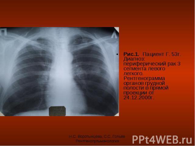 Рис.1. Пациент Г. 53г. Диагноз: периферический рак 3 сегмента левого легкого. Рентгенограмма органов грудной полости в прямой проекции от 24.12.2000г. Рис.1. Пациент Г. 53г. Диагноз: периферический рак 3 сегмента левого легкого. Рентгенограмма орган…