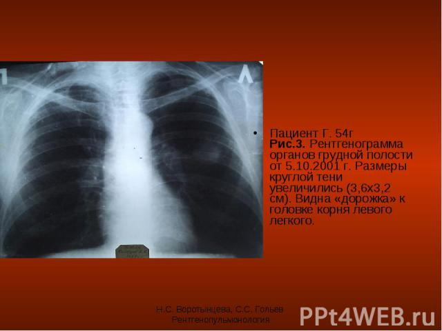 Пациент Г. 54г Рис.3. Рентгенограмма органов грудной полости от 5.10.2001 г. Размеры круглой тени увеличились (3,6х3,2 см). Видна «дорожка» к головке корня левого легкого. Пациент Г. 54г Рис.3. Рентгенограмма органов грудной полости от 5.10.2001 г. …