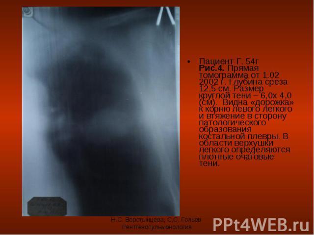 Пациент Г. 54г Рис.4. Прямая томограмма от 1.02 2002 г. Глубина среза 12,5 см. Размер круглой тени – 6,0х 4,0 (см). Видна «дорожка» к корню левого легкого и втяжение в сторону патологического образования костальной плевры. В области верхушки легкого…