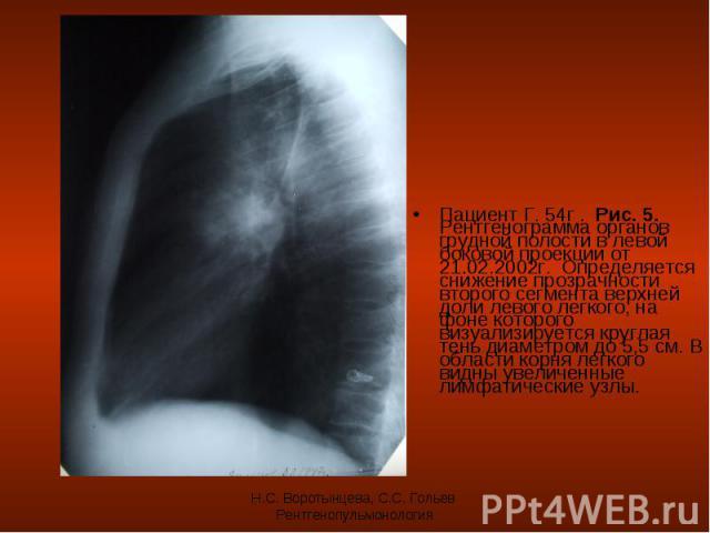 Пациент Г. 54г . Рис. 5. Рентгенограмма органов грудной полости в левой боковой проекции от 21.02.2002г. Определяется снижение прозрачности второго сегмента верхней доли левого легкого, на фоне которого визуализируется круглая тень диаметром до 5,5 …