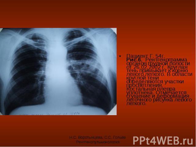 Пациент Г. 54г. Рис.6. Рентгенограмма органов грудной полости от 26.02.2002 г. Круглая тень примыкает к корню левого легкого. В области круглой тени определяются участки просветления. Костальная плевра уплотнена. Отмечается сгущение и деформация лег…