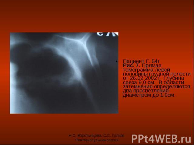 Пациент Г. 54г Рис. 7. Прямая томограмма левой половины грудной полости от 26.02 2002 г. Глубина среза 9,0 см. В области затемнения определяются два просветления диаметром до 1,0см. Пациент Г. 54г Рис. 7. Прямая томограмма левой половины грудной пол…
