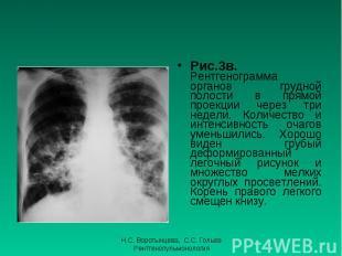 Рис.3в. Рентгенограмма органов грудной полости в прямой проекции через три недел