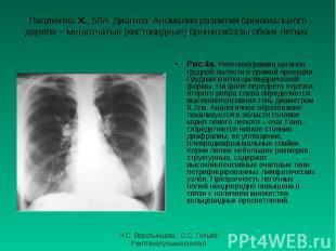 Рис.4а. Рентгенограмма органов грудной полости в прямой проекции. Грудная клетка