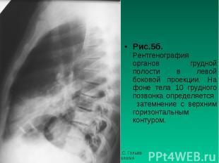 Рис.5б. Рентгенография органов грудной полости в левой боковой проекции. На фоне