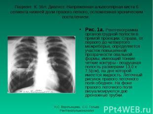 Рис. 1а. Рентгенограмма органов грудной полости в прямой проекции. Справа, от пе