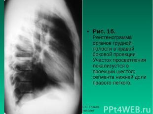 Рис. 1б. Рентгенограмма органов грудной полости в правой боковой проекции. Участ