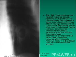 Рис. 2б. Томография органов грудной полости в прямой проекции. Кольцевидная тень