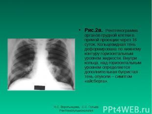 Рис.2в. Рентгенограмма органов грудной клетки в прямой проекции через 16 суток.