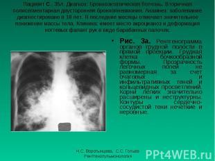 Рис. 3а. Рентгенограмма органов грудной полости в прямой проекции. Грудная клетк