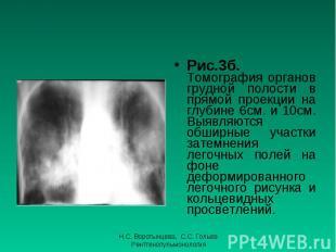 Рис.3б. Томография органов грудной полости в прямой проекции на глубине 6см. и 1