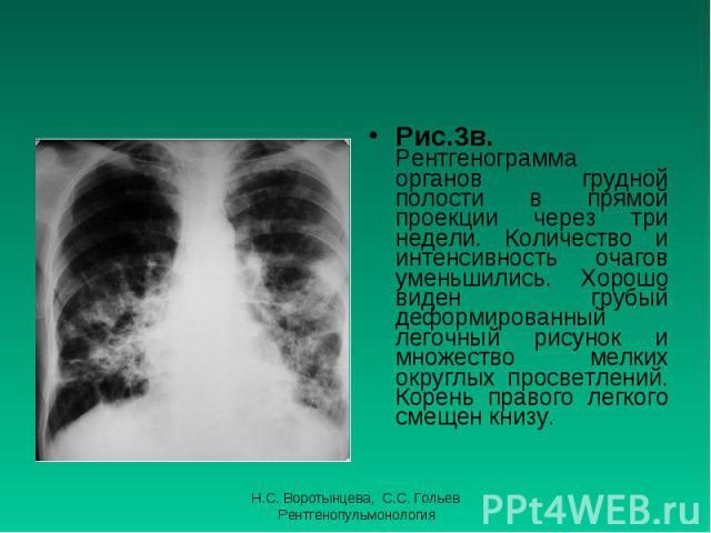 Рис.3в. Рентгенограмма органов грудной полости в прямой проекции через три недели. Количество и интенсивность очагов уменьшились. Хорошо виден грубый деформированный легочный рисунок и множество мелких округлых просветлений. Корень правого легкого с…
