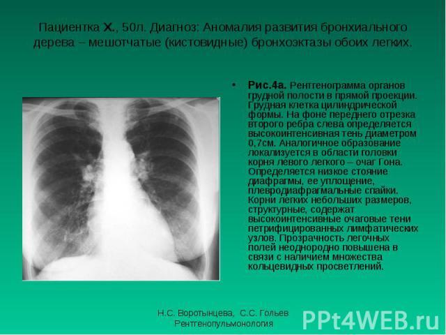 Рис.4а. Рентгенограмма органов грудной полости в прямой проекции. Грудная клетка цилиндрической формы. На фоне переднего отрезка второго ребра слева определяется высокоинтенсивная тень диаметром 0,7см. Аналогичное образование локализуется в области …