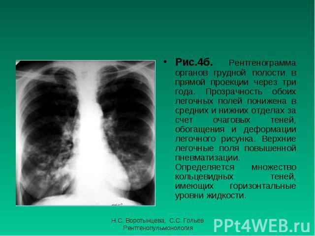 Рис.4б. Рентгенограмма органов грудной полости в прямой проекции через три года. Прозрачность обоих легочных полей понижена в средних и нижних отделах за счет очаговых теней, обогащения и деформации легочного рисунка. Верхние легочные поля повышенно…