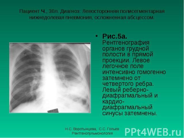 Рис.5а. Рентгенография органов грудной полости в прямой проекции. Левое легочное поле интенсивно гомогенно затемнено от четвертого ребра. Левый реберно-диафрагмальный и кардио-диафрагмальный синусы затемнены. Рис.5а. Рентгенография органов грудной п…