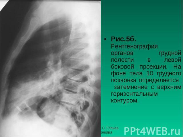 Рис.5б. Рентгенография органов грудной полости в левой боковой проекции. На фоне тела 10 грудного позвонка определяется затемнение с верхним горизонтальным контуром. Рис.5б. Рентгенография органов грудной полости в левой боковой проекции. На фоне те…