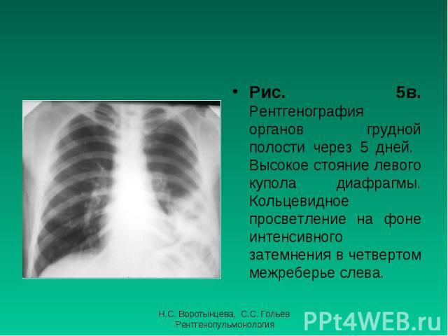 Рис. 5в. Рентгенография органов грудной полости через 5 дней. Высокое стояние левого купола диафрагмы. Кольцевидное просветление на фоне интенсивного затемнения в четвертом межреберье слева. Рис. 5в. Рентгенография органов грудной полости через 5 дн…