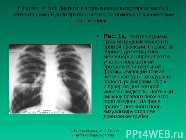 Рис. 1а. Рентгенограмма органов грудной полости в прямой проекции. Справа, от первого до четвертого межреберья, определяется участок повышенной прозрачности овальной формы, имеющий тонкие четкие контуры - воздушная полость размерами 13,0 х 7,5(см), …