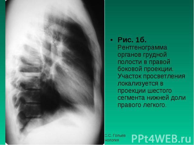 Рис. 1б. Рентгенограмма органов грудной полости в правой боковой проекции. Участок просветления локализуется в проекции шестого сегмента нижней доли правого легкого. Рис. 1б. Рентгенограмма органов грудной полости в правой боковой проекции. Участок …