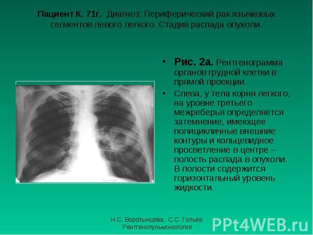 Рис. 2а. Рентгенограмма органов грудной клетки в прямой проекции. Рис. 2а. Рентгенограмма органов грудной клетки в прямой проекции. Слева, у тела корня легкого, на уровне третьего межреберья определяется затемнение, имеющее полицикличные внешние кон…