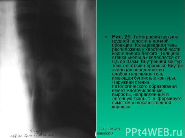 Рис. 2б. Томография органов грудной полости в прямой проекции. Кольцевидная тень расположена у хвостовой части корня левого легкого. Толщина стенки «кольца» колеблется от 0,5 до 3,0см. Внутренний контур тени нечеткий неровный. Внутри «кольца» опреде…
