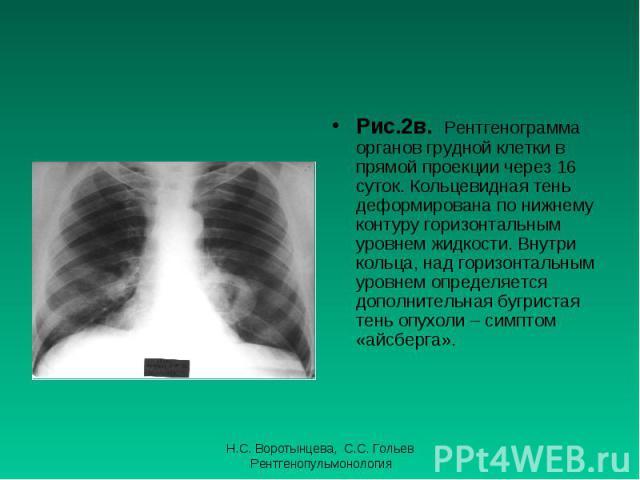 Рис.2в. Рентгенограмма органов грудной клетки в прямой проекции через 16 суток. Кольцевидная тень деформирована по нижнему контуру горизонтальным уровнем жидкости. Внутри кольца, над горизонтальным уровнем определяется дополнительная бугристая тень …