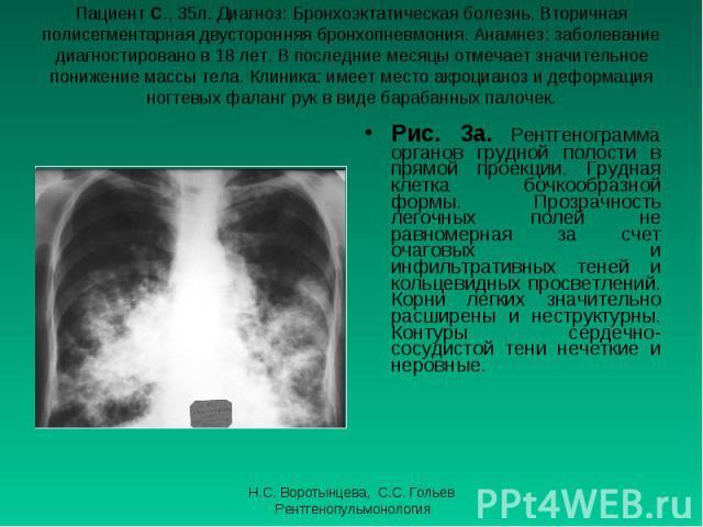 Рис. 3а. Рентгенограмма органов грудной полости в прямой проекции. Грудная клетка бочкообразной формы. Прозрачность легочных полей не равномерная за счет очаговых и инфильтративных теней и кольцевидных просветлений. Корни легких значительно расширен…