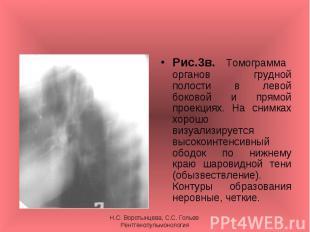 Рис.3в. Томограмма органов грудной полости в левой боковой и прямой проекциях. Н