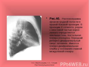 Рис.4б. Рентгенограмма органов грудной полости в правой боковой проекции. В прое