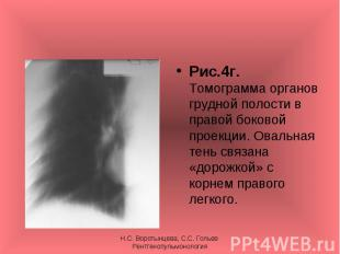 Рис.4г. Томограмма органов грудной полости в правой боковой проекции. Овальная т